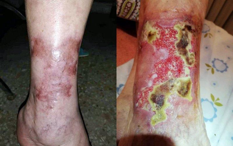 Golenja razjeda pred prvo obravnavo s celično medicino ter sedem mesecev po njej.
