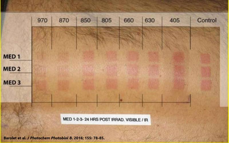 Slika kaže na zmanjšan eritem
